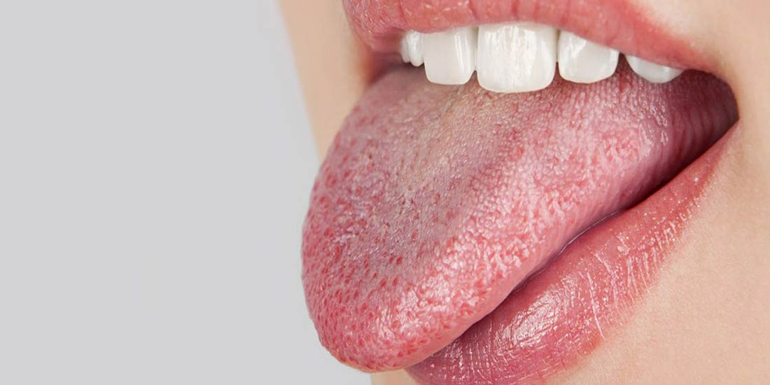 ¿Qué es la boca seca?